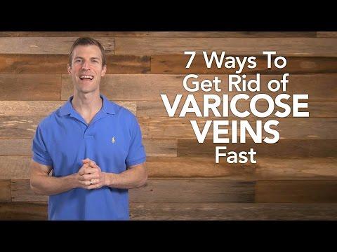 7 Ways to Get Rid of Varicose Veins Fast | Dr. Josh Axe