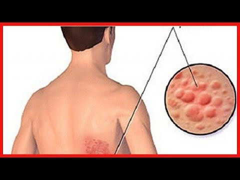 La vitamine б1 du psoriasis