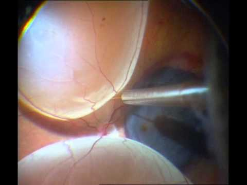 Macular Translocation