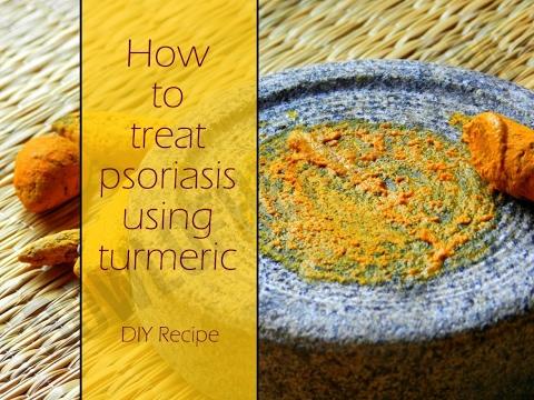 De quoi il y a une maladie le psoriasis