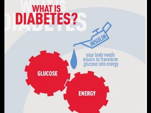 Malz und Typ-2-Diabetes mellitus