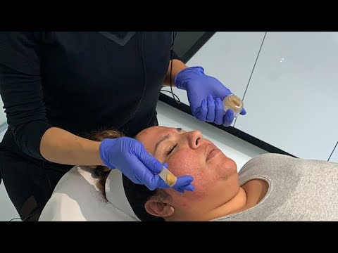 Cosmelan and Enlighten Peels