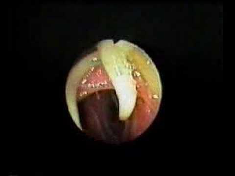 Isang lunas para sa mga worm para sa mga bata at matatanda Pangalan