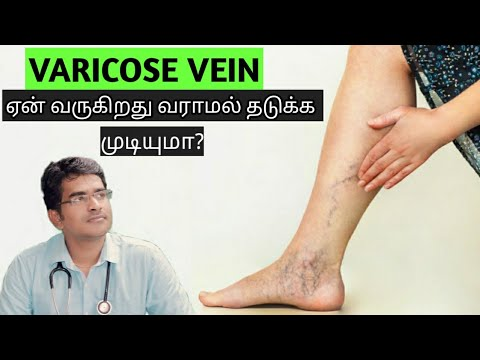 Dizabilitate în picioarele varicoase
