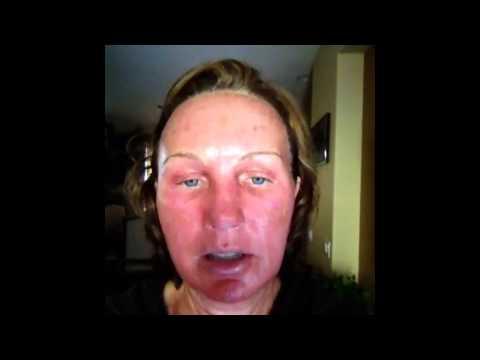 Rejuvenating facial na may galapong