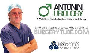 Penile prosthesis explantation