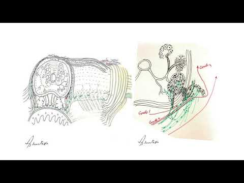 Prostatakrebs ist die dritte Stufe