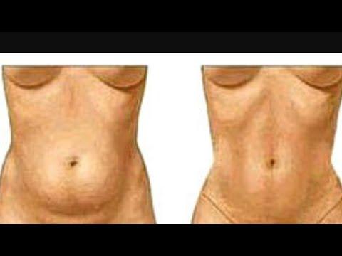 Como arreglar la grasa en el vientre balanceando la presión