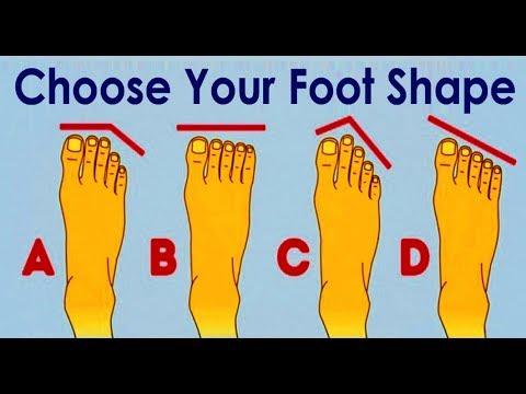Koślawa deformacja stóp 2 stopnie