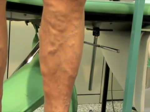 Trombosi affilata ed embolia di arterie delle estremità più basse