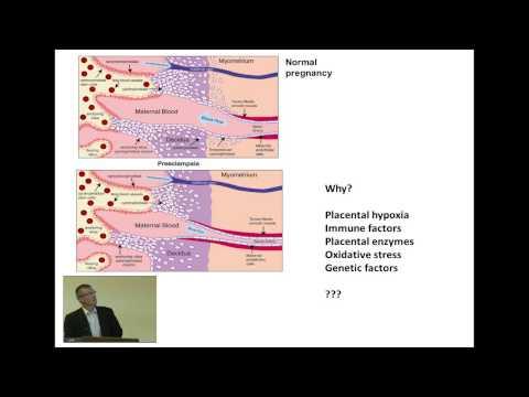 Pulmonale Hypertonie bei Neugeborenen in CHD