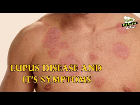 Video Lupus Disease and it's Symptoms - Health Sutra