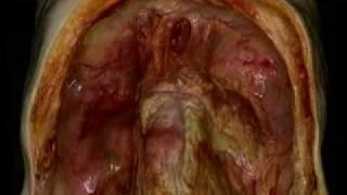 Abdominal Cavity - Peritoneum