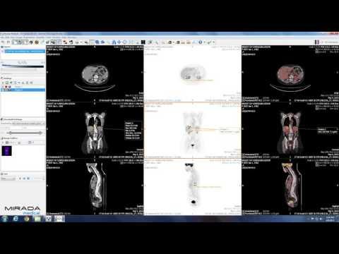 Trattamento a lungo termine di prostatite acuta