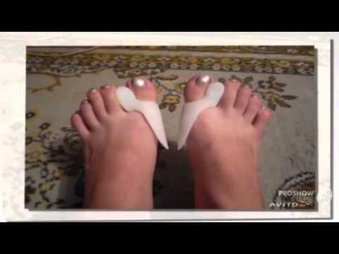 Лфк при вальгусной деформации голени у детей
