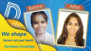 We shape faces not just teeth. Dentajoy Invisalign