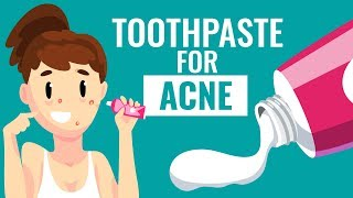 Is Using Toothpaste For Acne safe?    Know the Truth