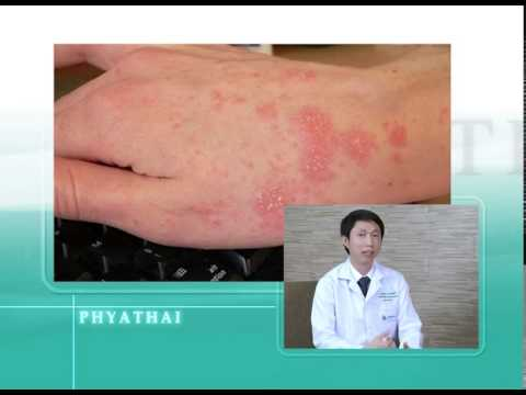Amitriptyline ในโรคสะเก็ดเงิน