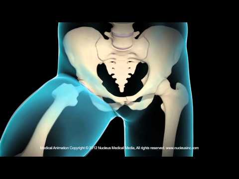 Video-Tutorial von Heilgymnastik in Osteochondrose