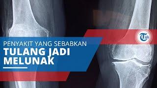 Osteomalacia, Salah Satu Jenis Penyakit Tulang Sebabkan Penderitanya Mengalami Tulang Lunak