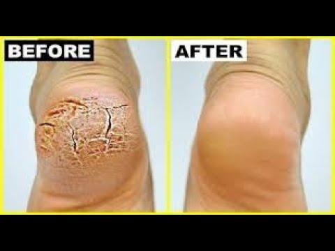 Pereți interni de varicoză pe picioarele simptomelor