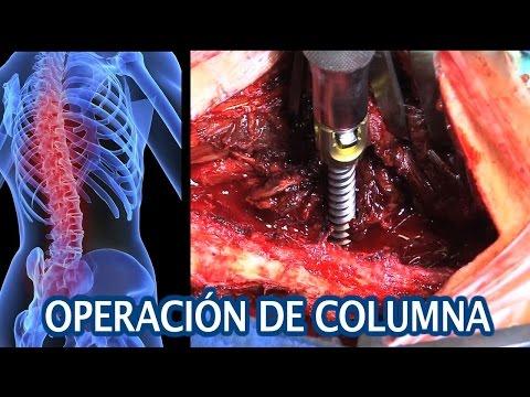 Cómo poner en su lugar las vértebras en la columna cervical