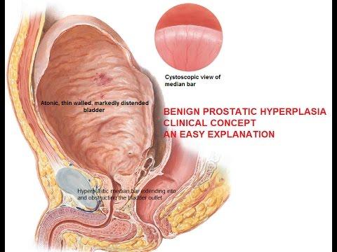 Prostatīts diagramma narkotiku ārstēšana