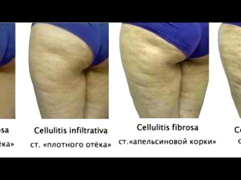 Питание при котором растут мышцы а не жир