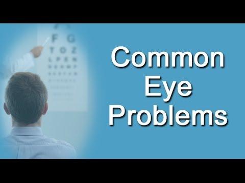 Video Common Eye Problems