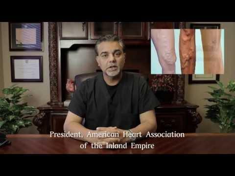 Prevenzione di trombosi allatto di vibrare arrhythmia