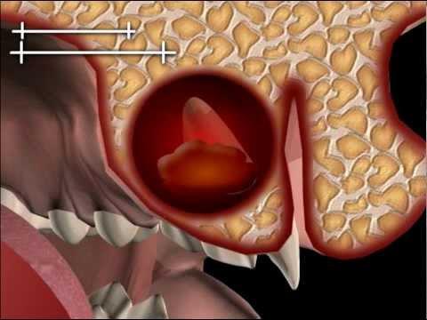 Behandelt chronische Prostatitis