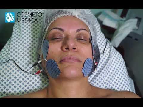Cosmetomedica- Electroestimulación facial