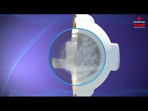 Глаз зрение реферат