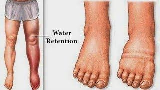 6 THINGS THAT CAUSE THE RETENTION OF FLUID IN YOUR BODY AND HOW