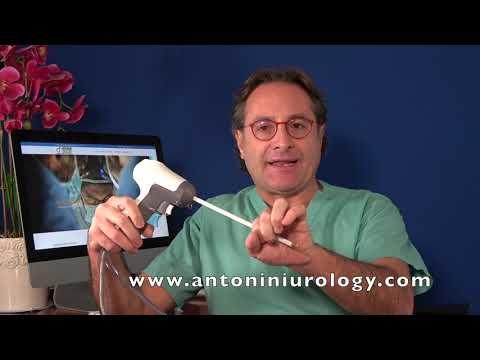 Javítja a vizelési prosztatitis