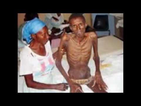 Video 15 foto Penderita Penyakit HIV AIDS