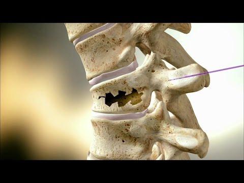 Что такое трехосный сустав