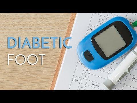 Zweite Art von Diabetes-Behandlung
