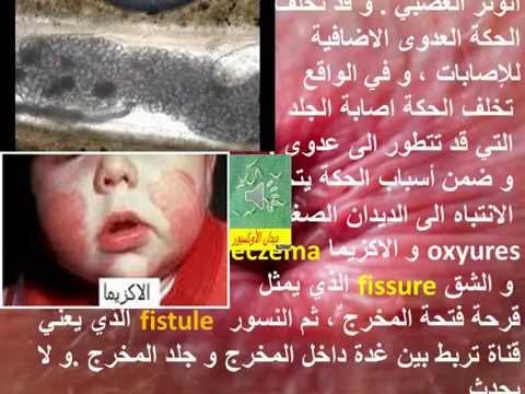 Sur le doigt le lichen ou leczéma