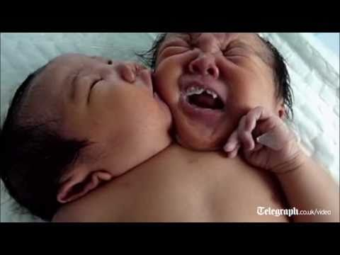Two-headed baby: Amazing conjoined twins born in China