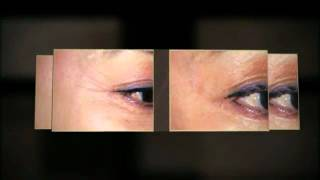 preview picture of video 'Clinic Eleven Appearance & Skin Cancer Medicine Paraparaumu Eye Wrinkles Video'