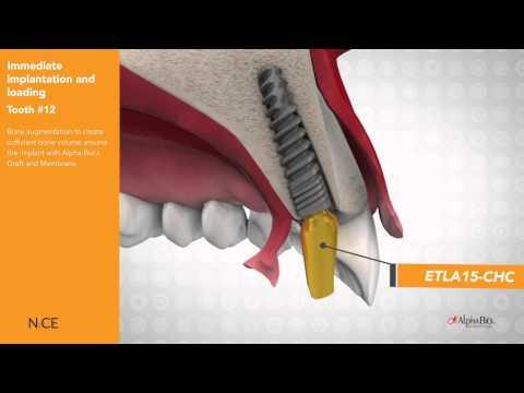 NICE Implant Drill Protocol | Alpha-Bio Tec