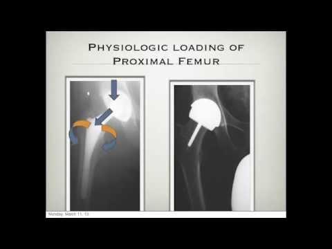 Come ridurre il dolore lombare della colonna vertebrale