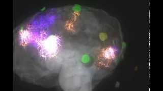 Как медитация воздействует на мозг