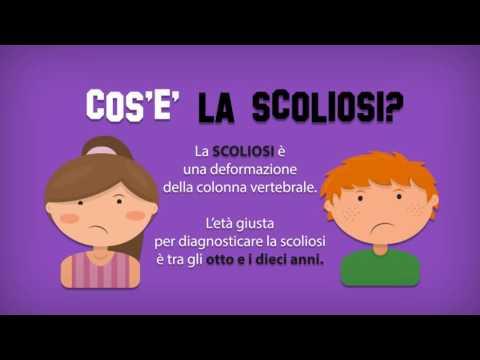 Codici secondo mkb 10o scoliosis