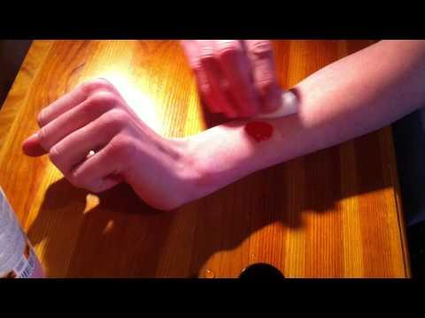 Les mains les taches de pigment