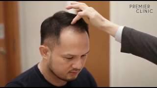 MANSON's JOURNEY FOR HAIR RESTORATION