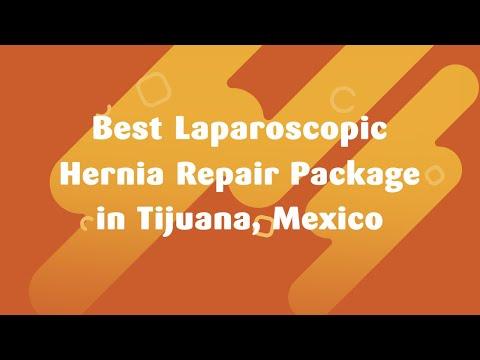Best Laparoscopic Hernia Repair Package in Tijuana, Mexico