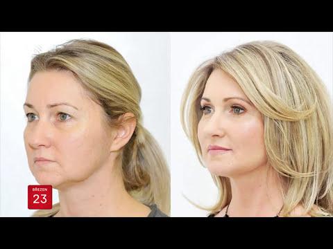 Krémy proti stárnutí s peptidy