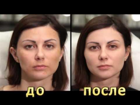 Пигментные пятна на лице причины и лечение у мужчин фото
